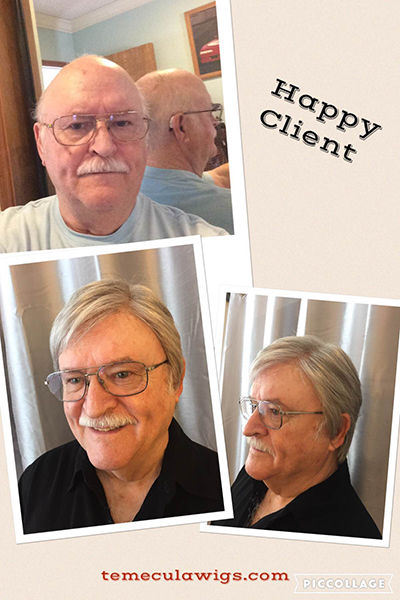 Men s Hair Replacement Before and After - Temecula Wigs 1a878962e018